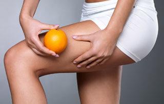 Verlauf Cellulite